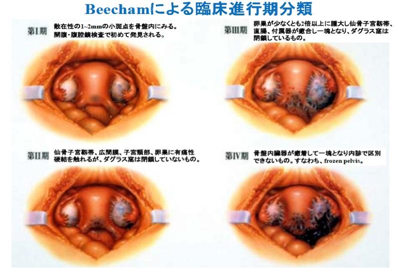 子宮内膜症の進行期分類