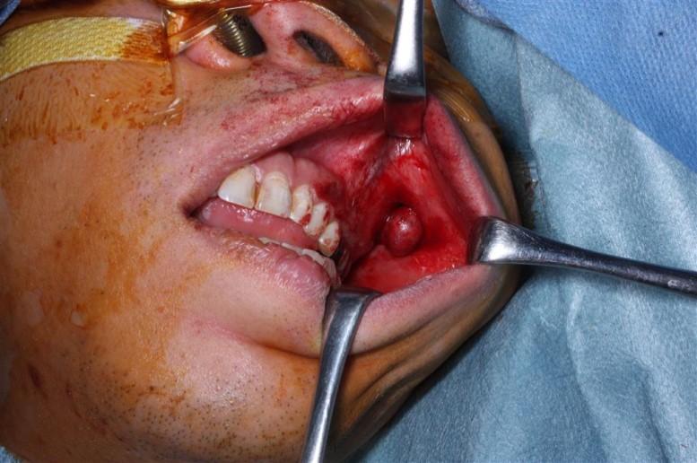 左頬部に生じた多形腺腫