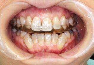顎関節症に対するスプリント(マウスピース)療法