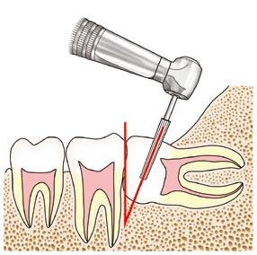 左下顎水平埋伏智歯の抜歯