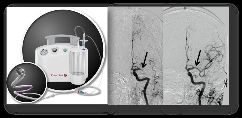 左:脳血管につまった血栓を吸引回収する装置。 右:閉塞した血管内の血栓は除去され、脳血管の再開通が得られた(矢印)。
