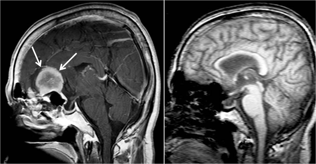 頭部を側面から見た前頭蓋底の大きな脳腫瘍(髄膜腫)。開頭手術により全摘出されている。左:術前、右:術後。