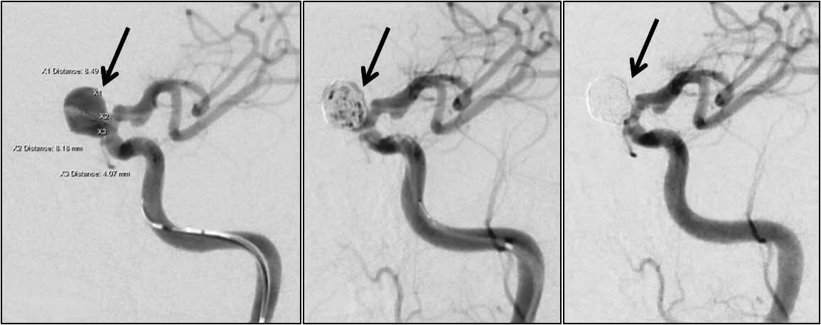 脳動脈瘤(内頚動脈瘤)のコイル塞栓術。自然破裂を防ぐため、脳動脈瘤に順にコイルをつめていき、瘤内への血流を遮断する。