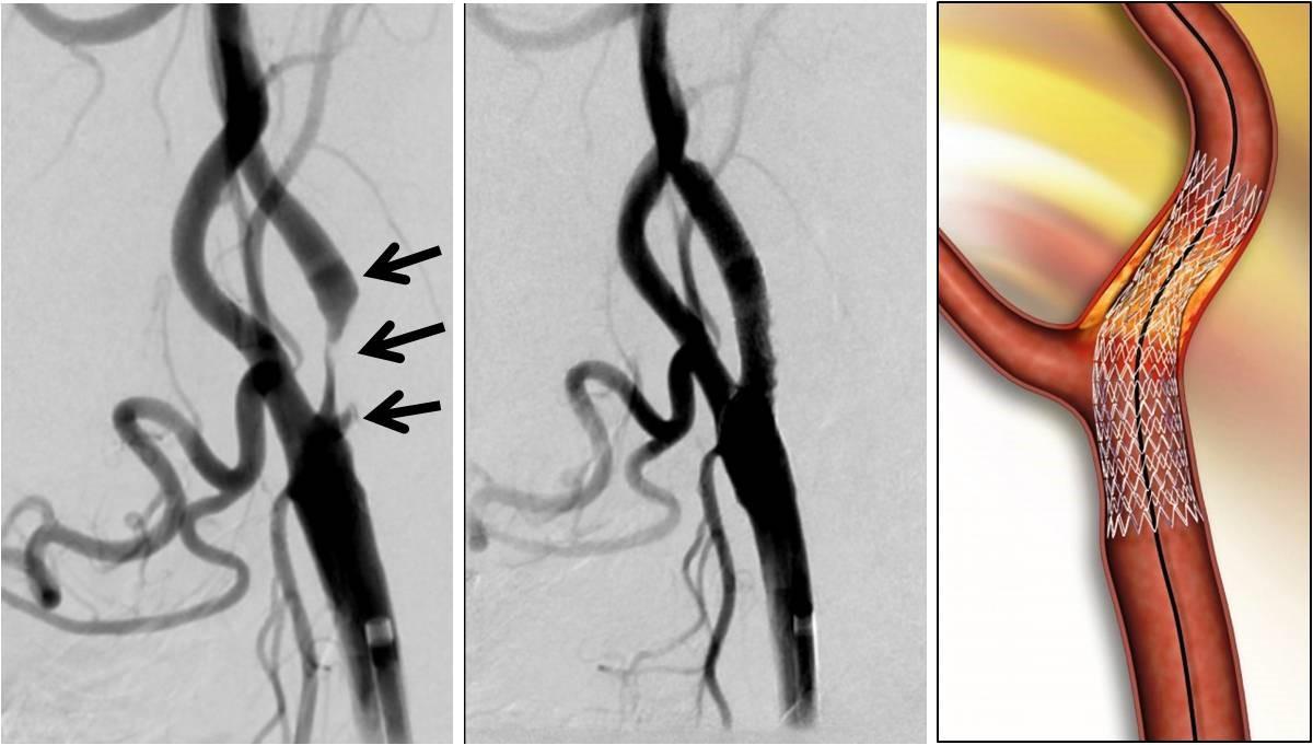 左:高度に狭窄した頚部内頚動脈(矢印)。 中:頚動脈ステント留置術により狭窄が改善した。 右:狭窄部位に治療として挿入されたステントの模式図。