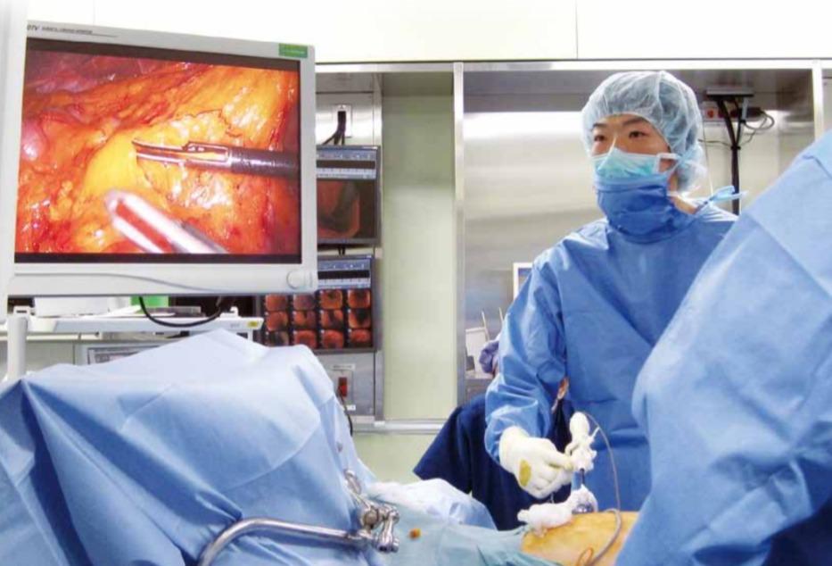 消化器のがんに対する腹腔鏡手術について