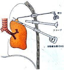 胸腔鏡手術のイメージ