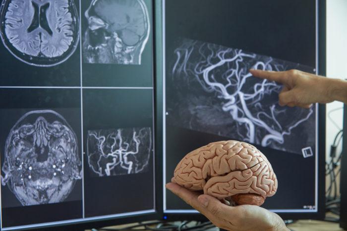 脳神経外科についてご紹介します