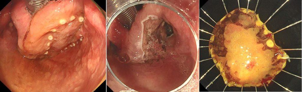 咽頭表在がんに対するESD