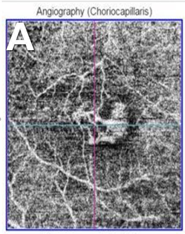 抗血管内皮増殖因子剤治療によって退縮した脈絡膜新生血管 A)投与前