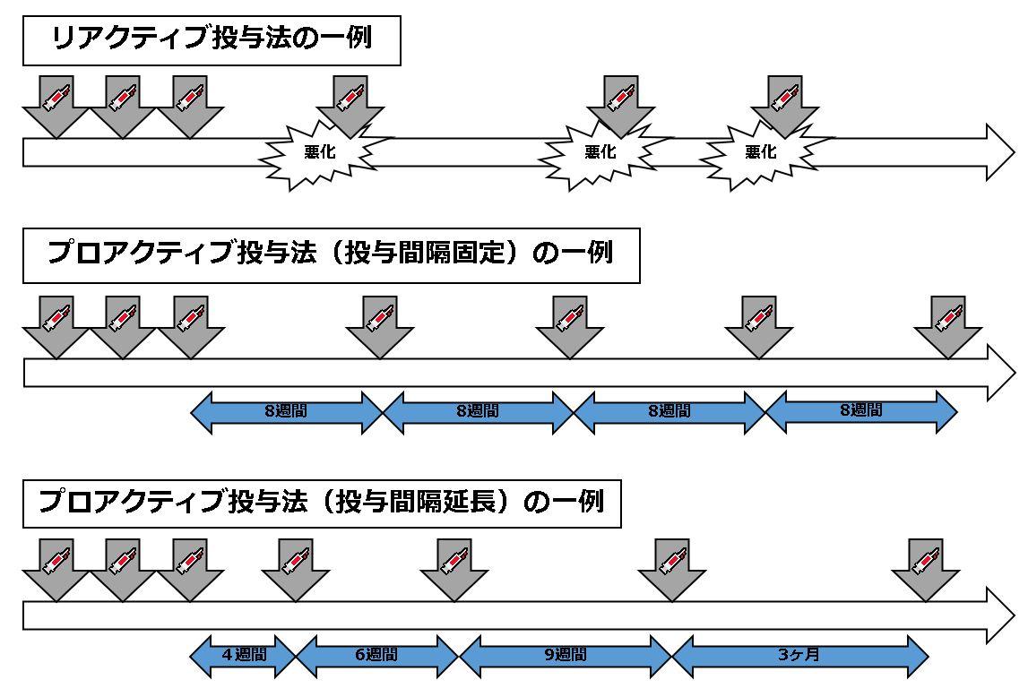 抗血管内皮増殖因子剤治療の投与スケジュール例