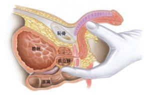 図1 前立腺の位置と直腸診